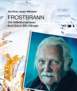 Frostbrann