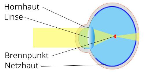Lensbest-LensbestShop-LensbestBlog:https://res.cloudinary.com/fourcare/image/fetch/q_90/f_auto/fl_force_strip/https://www.lensbest.de/blog/LensbestBlog/20170901-kurzsichtigkeit/bild1-kurzsichtigkeit-535x100px.jpg