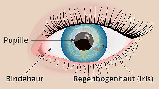 Strahlenkörper im Auge
