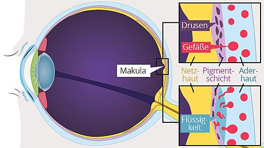 Entstehung einer Makuladegeneration