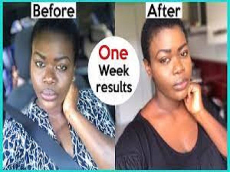 How to repair skin damaged by bleaching cream –Dermatologist