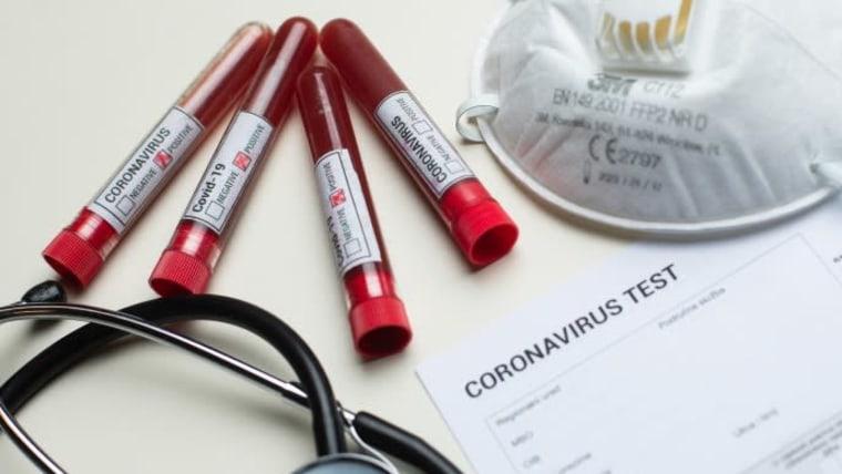 Coronavirus  (foto: Davor Puklavec / PIXSELL)