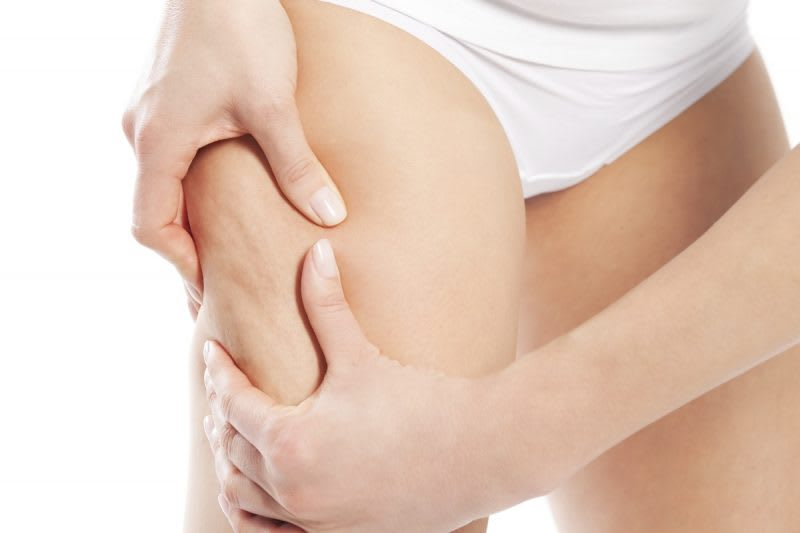 How to reduce cellulite with mesotherapy
