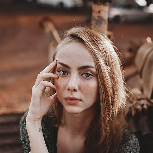 acne girl1
