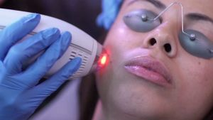 Fractional Laser session against scars, precedeed by Anestop application