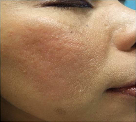 acne scars after needling treatment