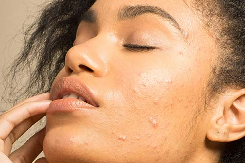 Acne scars solutions