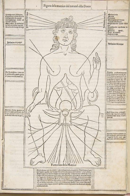 חיתוך עץ המראה מחקר של איברי האישה מהמאה ה־15, איטליה / צילום: wellcomeimages.org