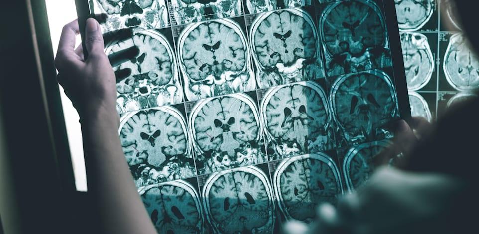 MRI של חולה עם אלצהיימר / צילום: Shutterstock, Atthapon Raksthaput