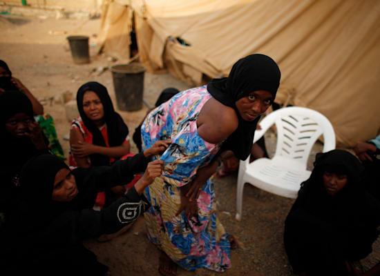 מהגרת עם פציעות על גופה מעינויים שנגמרו על ידי סוחרי בני אדם שחטפו אותה בגבול ערב הסעודית / צילום: Reuters, Ali Al Mahdi
