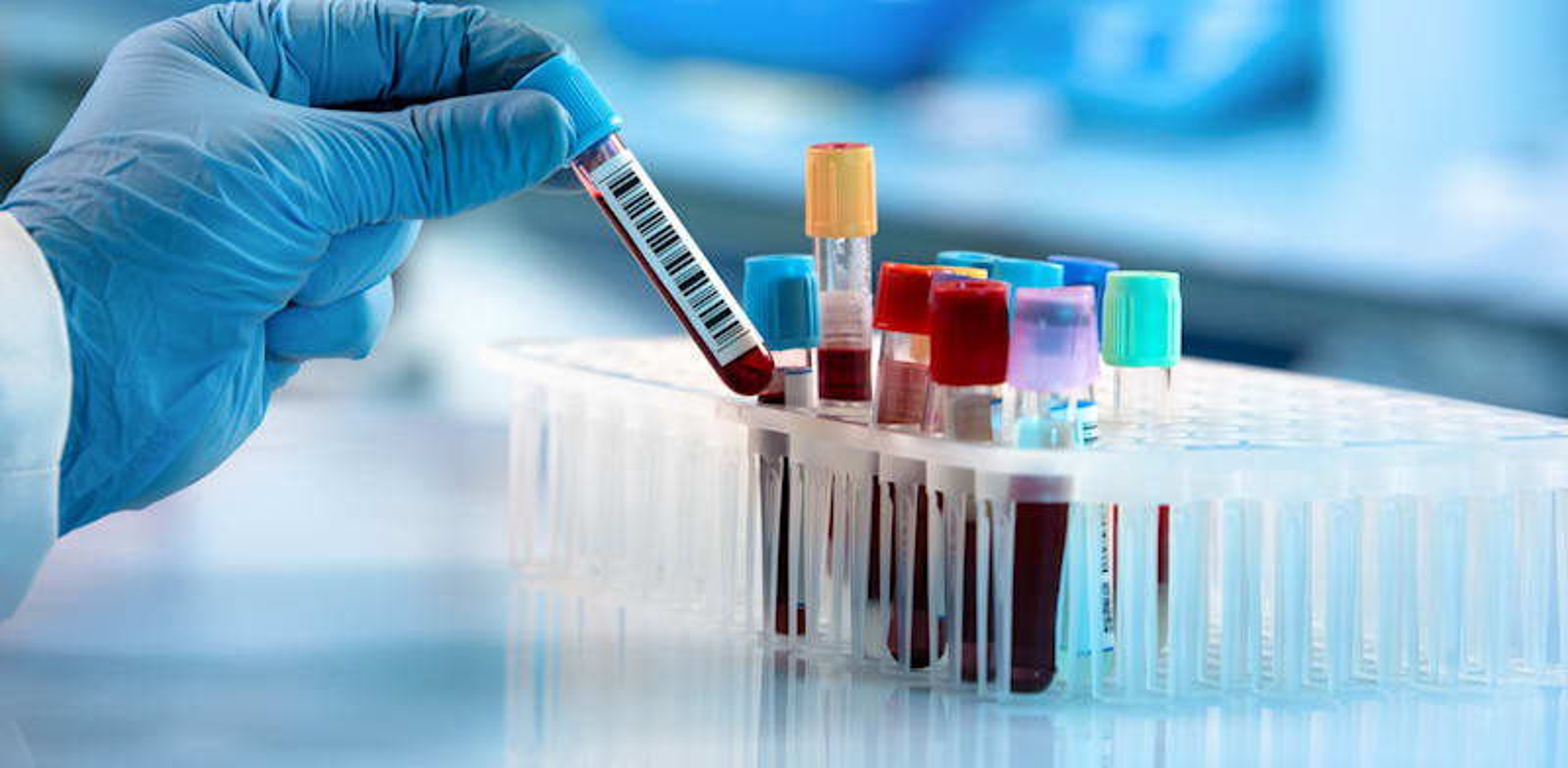 לישראל יש את האוצר הגדול של המאה ה-21 - מידע רפואי / צילום: Shutterstock, angellodeco