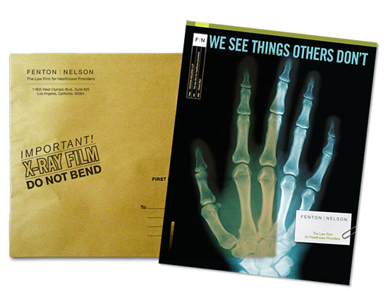 Mailer printed on an Xray of a hand