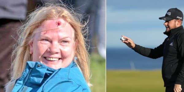 Die Zuschauerin trägt nach dem verzogenen Schlag von Tyrrell Hatton eine deutliche Verletzung davon. (Foto: Twitter/@GolferWandering