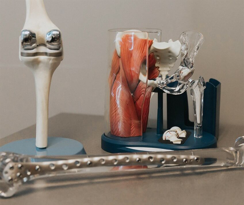 general orthopedic bone and joint models