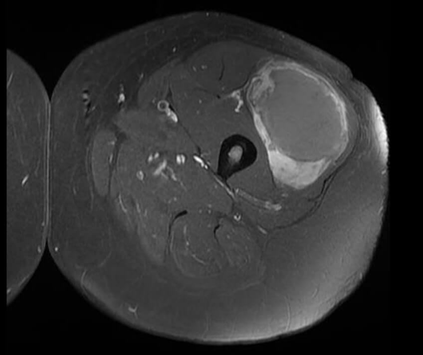 malignant soft tissue tumor x ray