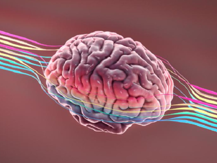 Image of a brain