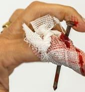 Wounded finger.jpg