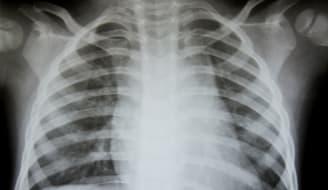 bigstock Chest x ray 27047375
