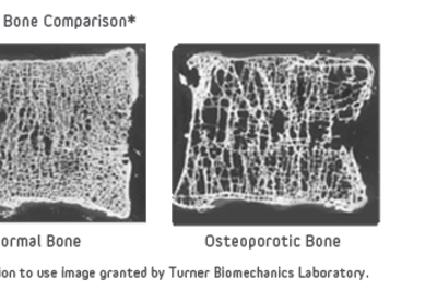 Bone_Comparison_of_Healthy_and_Osteoporotic_Vertibrae.png