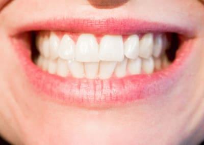 teeth 1652976 960 720 1
