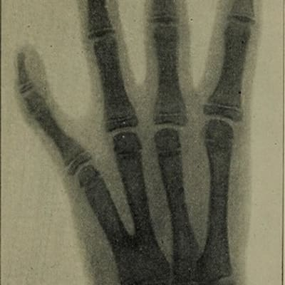 """Image from page 204 of """"The Röntgen rays in medical work"""" (1899)"""