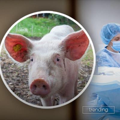 211021-pig-transplant-header.jpg