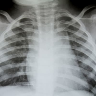 bigstock Chest x ray 27047375