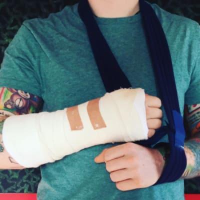 ed sheeran broken arm