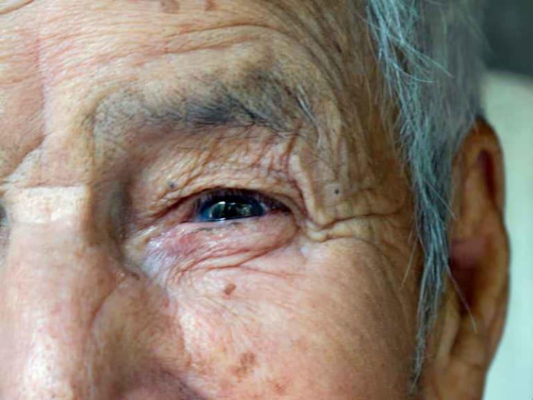 Longevità: i batteri giusti per vivere fino a cent'anni