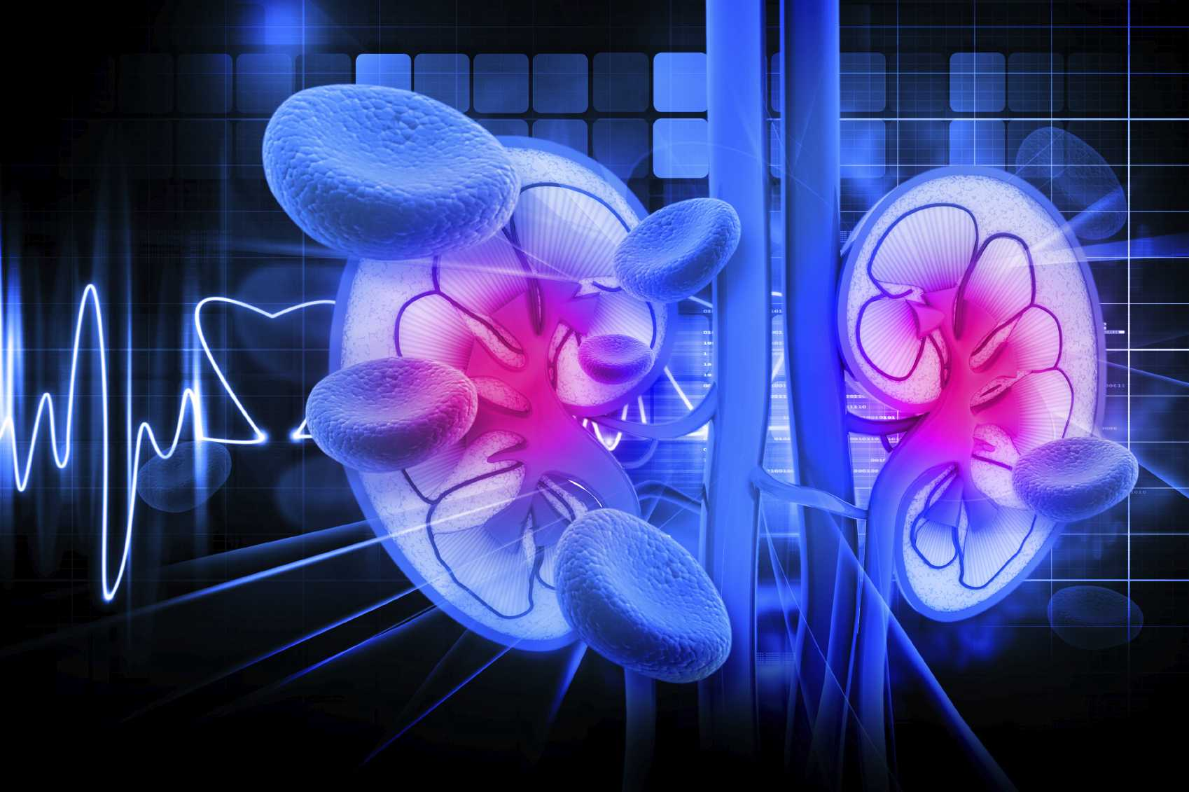 Find Can Type 2 Diabetes Cause Kidney Failure  For You