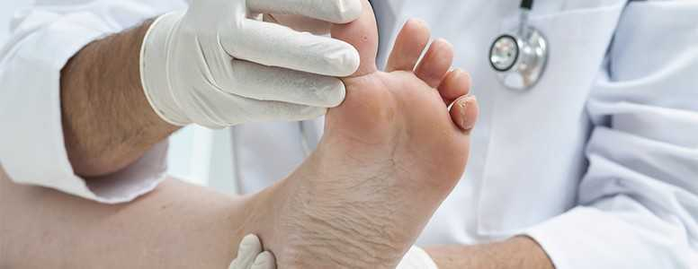 Smart Foot Mat Allows Earlier Detection Of Diabetic Foot Ulcers In Real World Study Diabetes