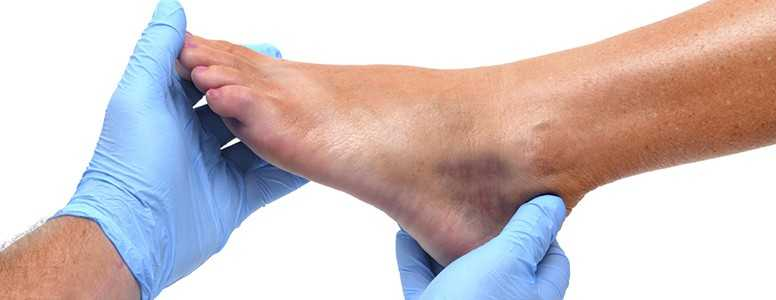 People With Diabetes Should Check Feet Twice A Day Says Leading