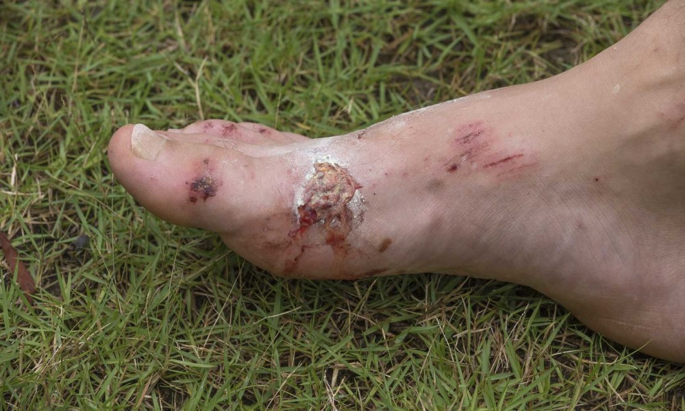 Foot Wounds And Infections
