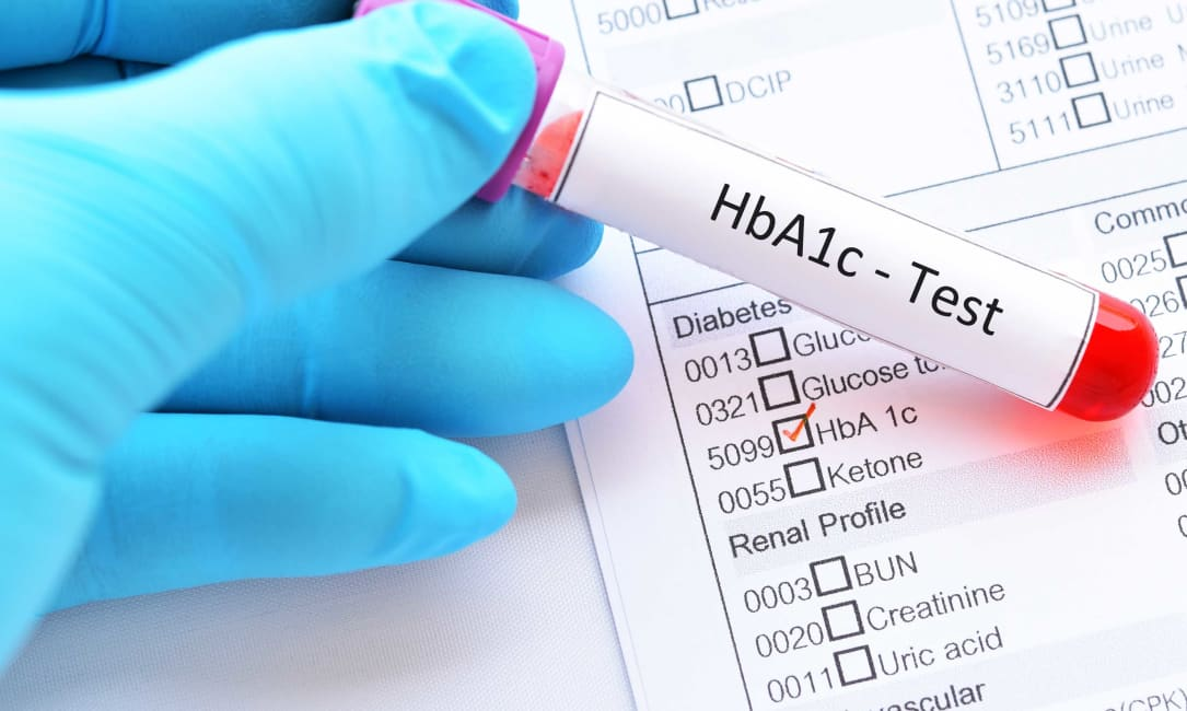 Convert HbA1c to  Average Blood Sugar Level