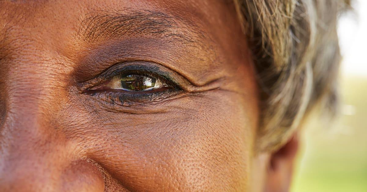 Eye health may indicate stroke risk