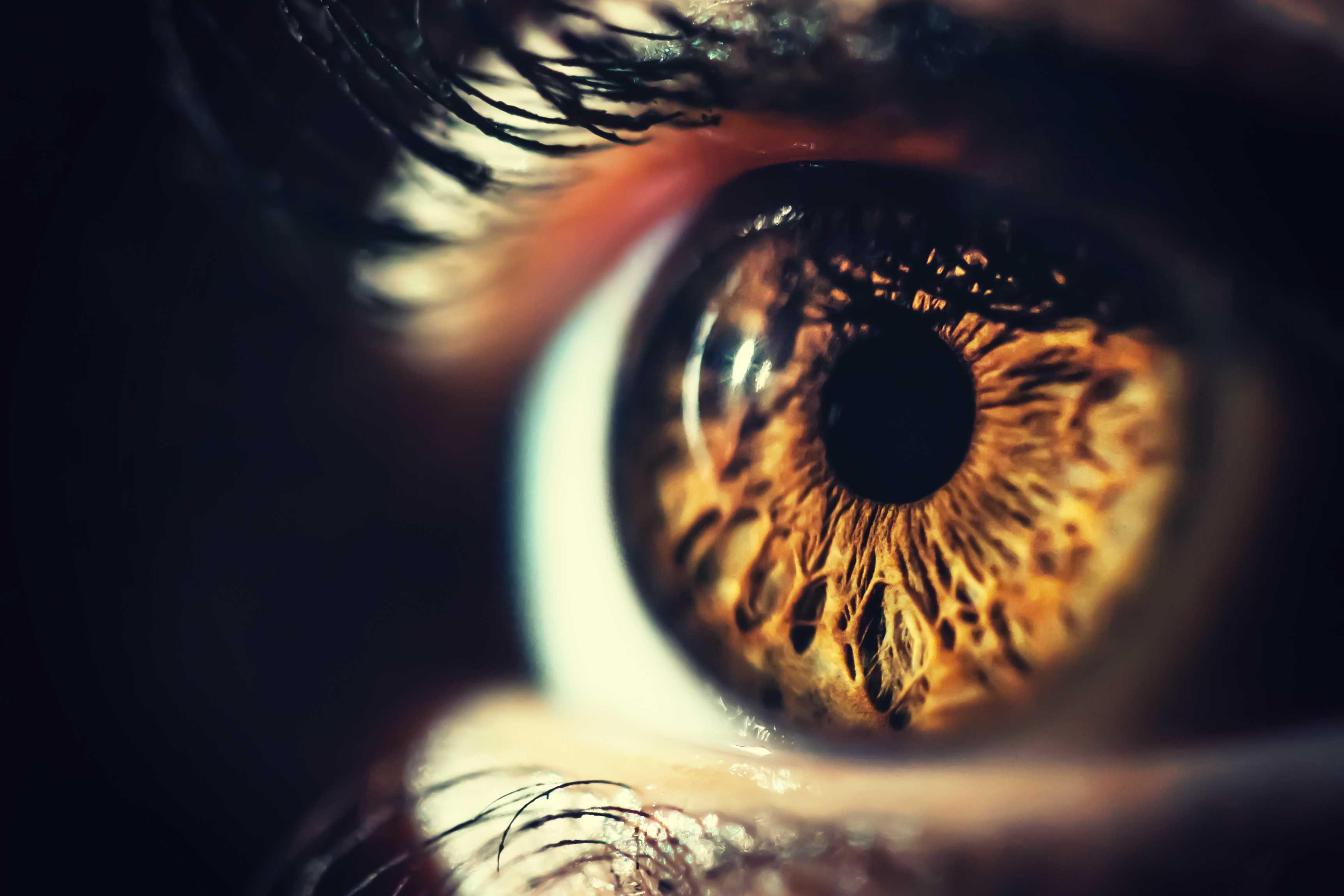 背景视网膜病变