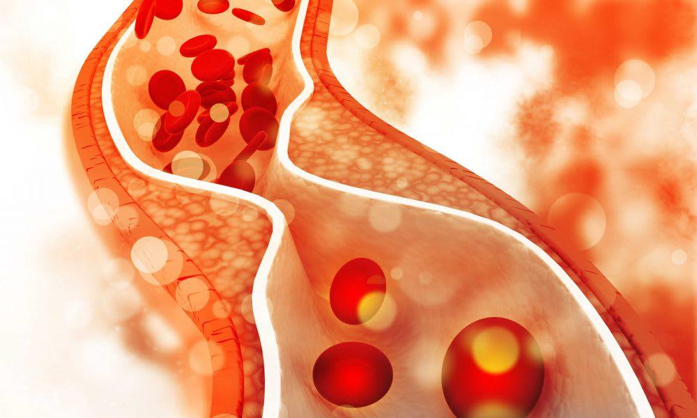 Dyslipidemia – unbalanced or unhealthy cholesterol levels