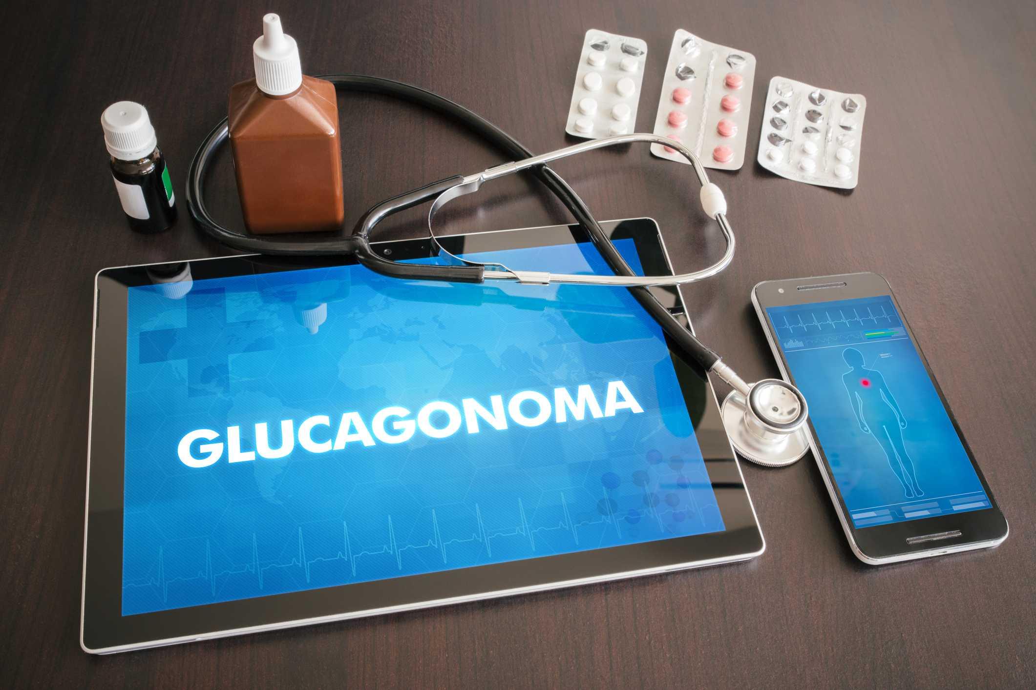 Glucagonoma