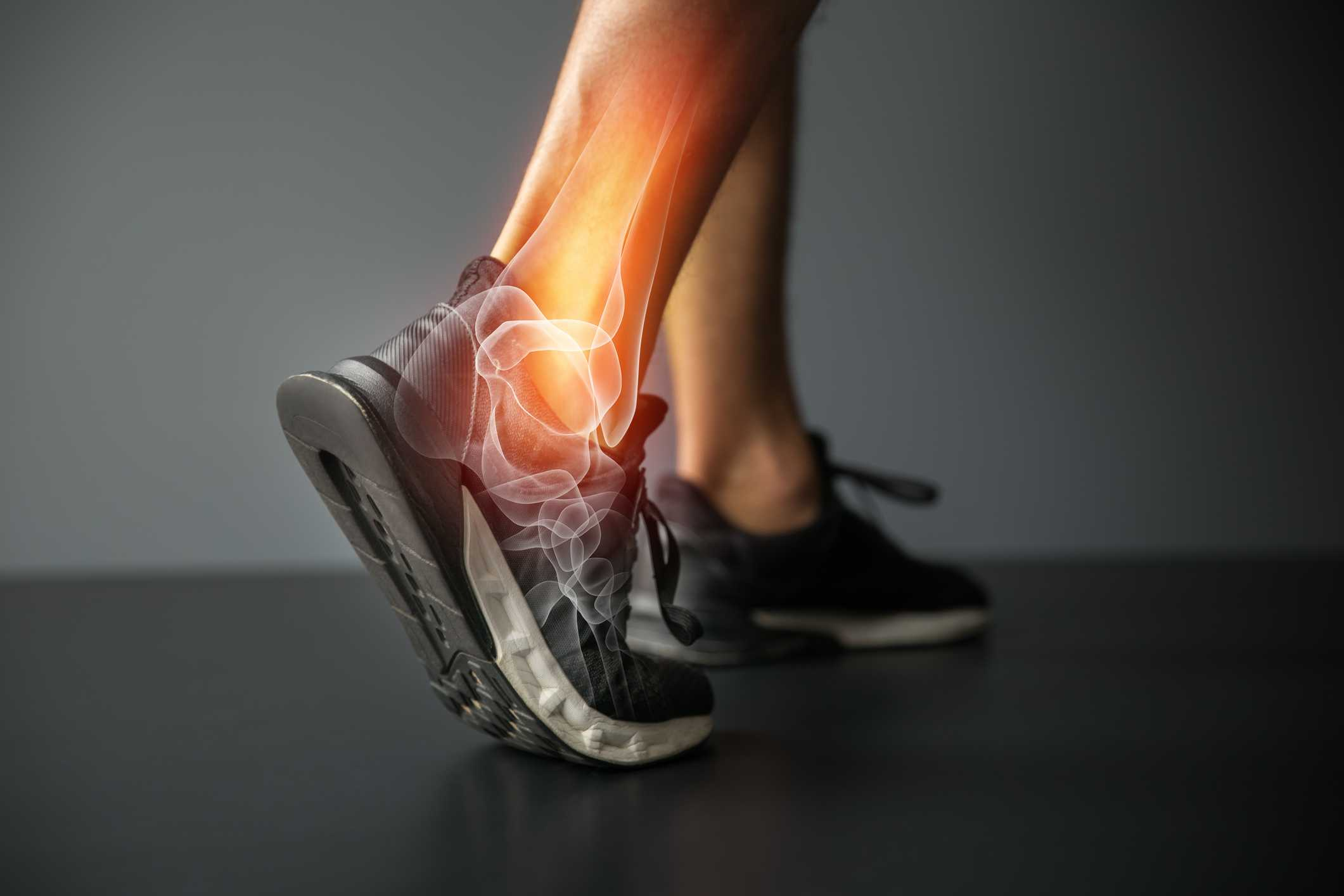 Joint Pain and Bone Conditions