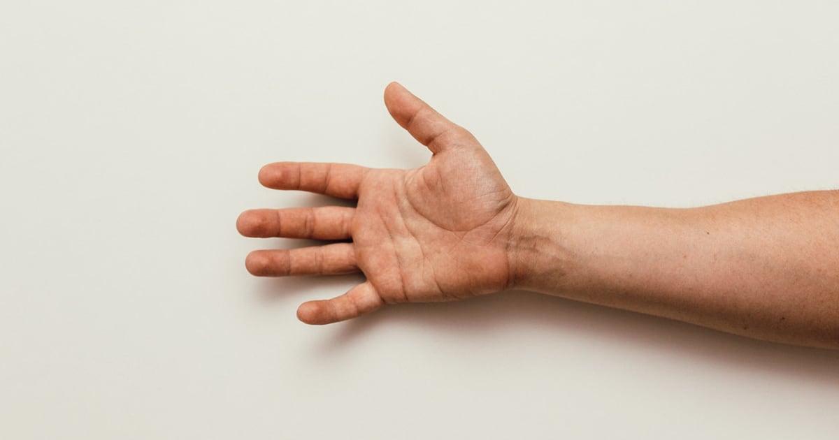 Flexor Tenosynovitis (Trigger Finger)