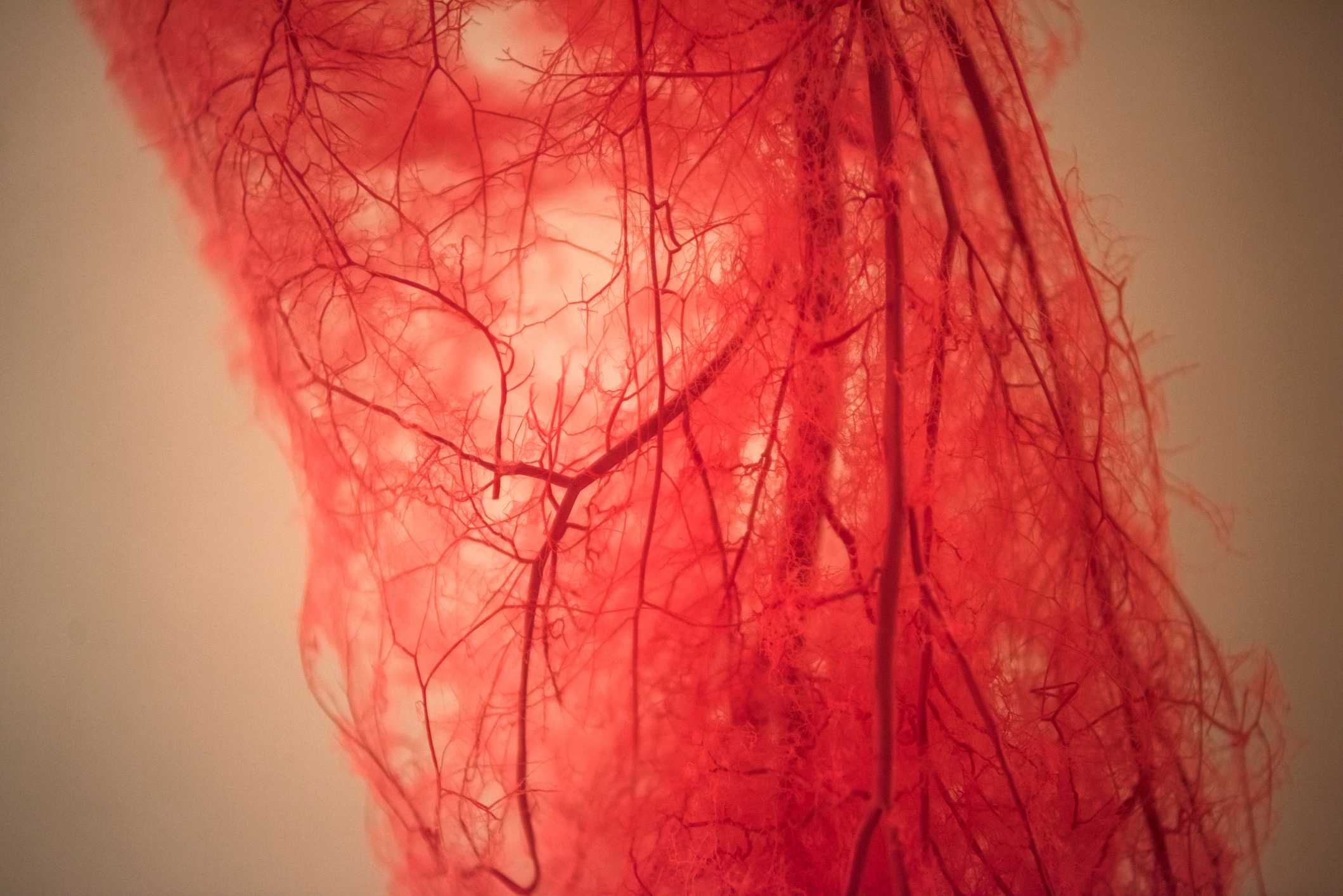 Diabetes and The Vascular System
