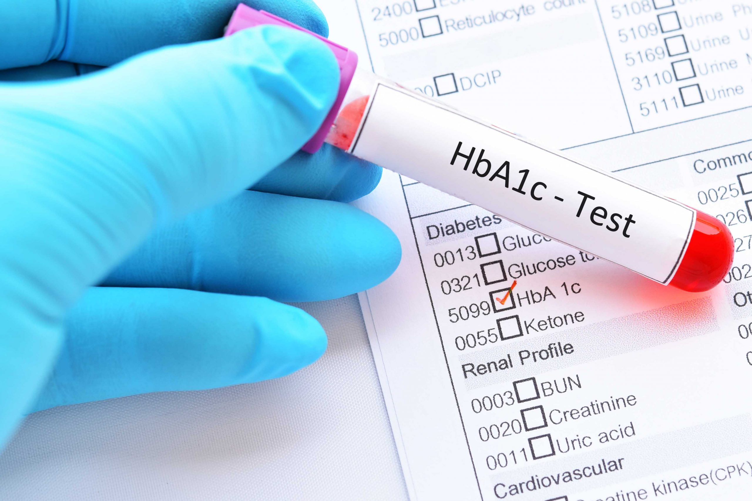 Hba1c Test For Diabetes Diagnosis Target Hba1c Home Tests