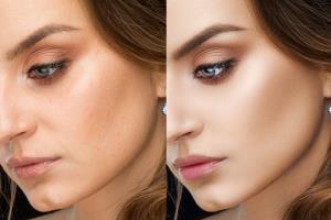 Portfolio for Skin Retouching