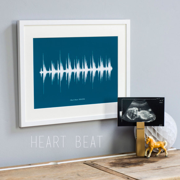 Ultrasound Beat