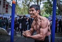COVID-19: A 72-year-old bodybuilder...