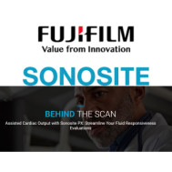 Assisted Cardiac Output with Sonosite PX: Streamline Your Fluid Responsiveness Evaluations
