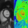 Black and white MRI pictures (left) to diagnose heart disease used today which can be very subjective. These could be replaced with colour coded pictures in the future.