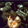 Coronary Artery Bypass Grafting Surgery