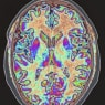 Colourised magnetic resonance image of the human brain