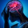 The Evolution of Cerebrovascular Critical Care
